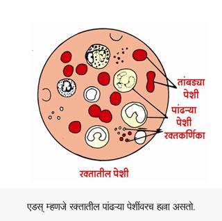 AIDS White Platelets Destroy