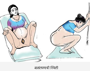 Childbirth Position