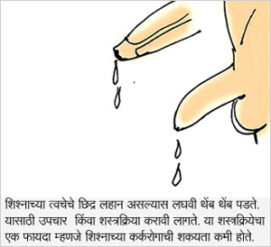 Drops Drops Urine