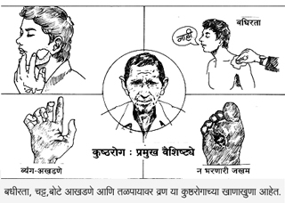 Non Contagious Leprosy