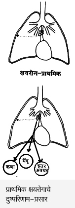 Small Age Tuberculosis