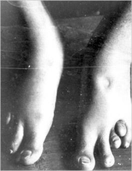 Swelling on the Feet