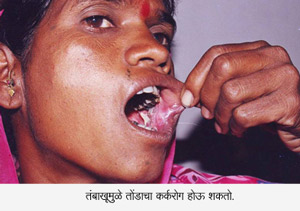 Tobacco Mouth Cancer