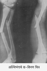 various fracture